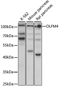 OLFM4 / Olfactomedin 4 Antibody - Western blot analysis of extracts of various cell lines, using OLFM4 antibody at 1:1000 dilution. The secondary antibody used was an HRP Goat Anti-Rabbit IgG (H+L) at 1:10000 dilution. Lysates were loaded 25ug per lane and 3% nonfat dry milk in TBST was used for blocking. An ECL Kit was used for detection and the exposure time was 30s.