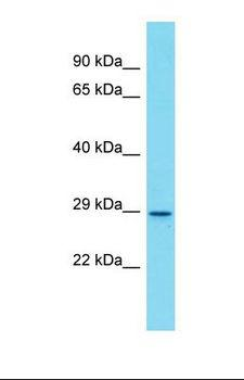 Olfr872 Antibody - Western blot of Mouse Spleen. Olfr872 antibody dilution 1.0 ug/ml.  This image was taken for the unconjugated form of this product. Other forms have not been tested.