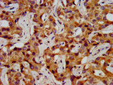 Immunohistochemistry image at a dilution of 1:200 and staining in paraffin-embedded human liver cancer performed on a Leica BondTM system. After dewaxing and hydration, antigen retrieval was mediated by high pressure in a citrate buffer (pH 6.0) . Section was blocked with 10% normal goat serum 30min at RT. Then primary antibody (1% BSA) was incubated at 4 °C overnight. The primary is detected by a biotinylated secondary antibody and visualized using an HRP conjugated SP system.