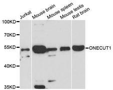 ONECUT1 / HNF6 Antibody - Western blot analysis of extracts of various cell lines, using ONECUT1 antibody at 1:3000 dilution. The secondary antibody used was an HRP Goat Anti-Rabbit IgG (H+L) at 1:10000 dilution. Lysates were loaded 25ug per lane and 3% nonfat dry milk in TBST was used for blocking. An ECL Kit was used for detection and the exposure time was 90s.