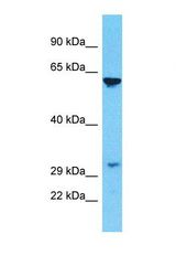 Western blot of Human Jurkat. OR10C1 antibody dilution 1.0 ug/ml.  This image was taken for the unconjugated form of this product. Other forms have not been tested.