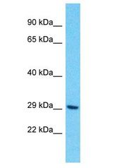 OR10H4 antibody Western Blot of HCT15. Antibody dilution: 1 ug/ml.  This image was taken for the unconjugated form of this product. Other forms have not been tested.