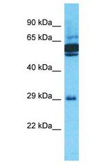 OR10J5 antibody Western Blot of ACHN. Antibody dilution: 1 ug/ml.  This image was taken for the unconjugated form of this product. Other forms have not been tested.