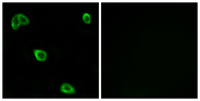Immunofluorescence analysis of LOVO cells, using OR10K1/10K2 Antibody. The picture on the right is blocked with the synthesized peptide.