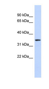 OR13C5 antibody LS-C109723 Western blot of Placenta lysate.  This image was taken for the unconjugated form of this product. Other forms have not been tested.