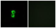 Immunofluorescence analysis of MCF7 cells, using OR1D4/5 Antibody. The picture on the right is blocked with the synthesized peptide.