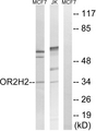 OR2H3 / OR2H2 Antibody - Western blot analysis of lysates from Jurkat and MCF-7 cells, using OR2H2 Antibody. The lane on the right is blocked with the synthesized peptide.
