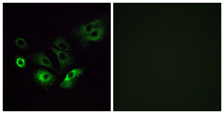 OR4Q3 Antibody - Immunofluorescence analysis of A549 cells, using OR4Q3 Antibody. The picture on the right is blocked with the synthesized peptide.