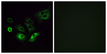 Immunofluorescence analysis of A549 cells, using OR4Q3 Antibody. The picture on the right is blocked with the synthesized peptide.
