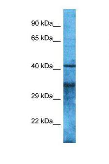 OR4S2 Antibody - Western blot of Human OVCAR-3. OR4S2 antibody dilution 1.0 ug/ml.  This image was taken for the unconjugated form of this product. Other forms have not been tested.
