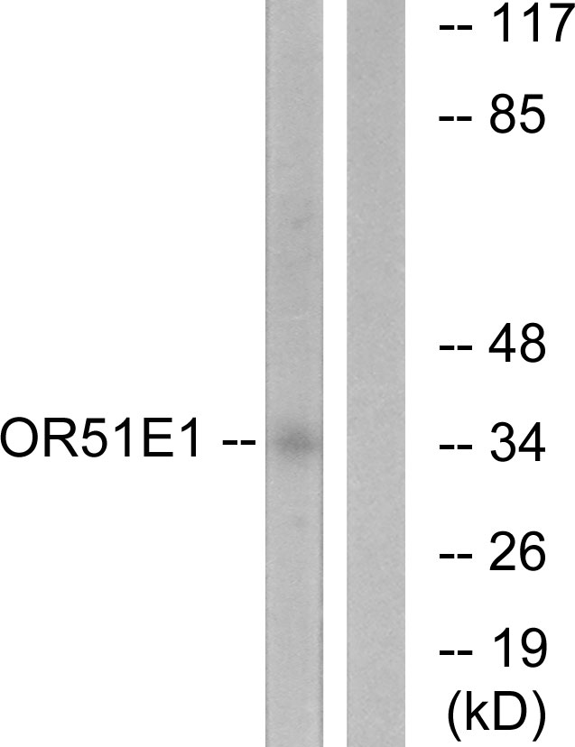 OR51E1 Antibody - Western blot analysis of lysates from HeLa cells, using OR51E1 Antibody. The lane on the right is blocked with the synthesized peptide.