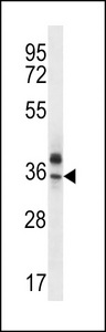 OR51Q1 Antibody - OR51Q1 Antibody western blot of MDA-MB435 cell line lysates (35 ug/lane). The OR51Q1 antibody detected the OR51Q1 protein (arrow).