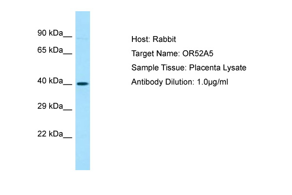 OR52A5 Antibody -  This image was taken for the unconjugated form of this product. Other forms have not been tested.