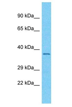 OR56A3 Antibody - OR56A3 antibody Western Blot of RPMI-8226. Antibody dilution: 1 ug/ml.  This image was taken for the unconjugated form of this product. Other forms have not been tested.