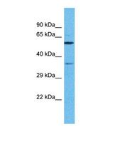 OR5C1 Antibody - Western blot of Human HeLa. OR5C1 antibody dilution 1.0 ug/ml.  This image was taken for the unconjugated form of this product. Other forms have not been tested.
