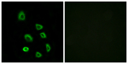 Immunofluorescence analysis of HUVEC cells, using OR5K1 Antibody. The picture on the right is blocked with the synthesized peptide.