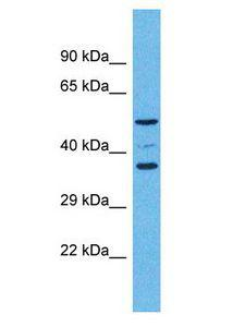 OR5K4 Antibody - OR5K4 antibody Western Blot of Fetal Kidney. Antibody dilution: 1 ug/ml.  This image was taken for the unconjugated form of this product. Other forms have not been tested.