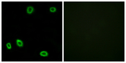 Immunofluorescence analysis of HUVEC cells, using OR5L1/2 Antibody. The picture on the right is blocked with the synthesized peptide.