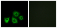 Immunofluorescence analysis of MCF7 cells, using OR5M1/5M10 Antibody. The picture on the right is blocked with the synthesized peptide.