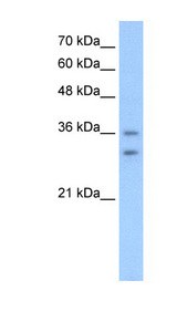 OR6C70 antibody ARP44511_T100-NP_001005499-OR6C70(olfactory receptor, family 6, subfamily C, member 70) Antibody Western blot of HepG2 cell lysate.  This image was taken for the unconjugated form of this product. Other forms have not been tested.