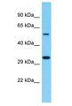 OR8B4 antibody Western Blot of THP-1. Antibody dilution: 1 ug/ml.  This image was taken for the unconjugated form of this product. Other forms have not been tested.