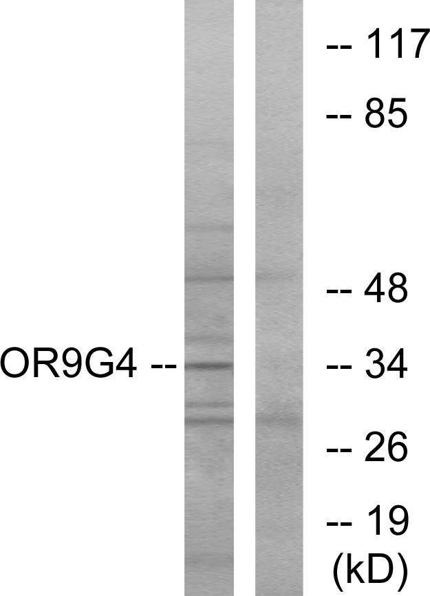 OR9G4 Antibody - Western blot analysis of lysates from HeLa cells, using OR9G4 Antibody. The lane on the right is blocked with the synthesized peptide.