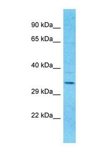 OR9I1 Antibody - Western blot of Human Fetal Kidney. OR9I1 antibody dilution 1.0 ug/ml.  This image was taken for the unconjugated form of this product. Other forms have not been tested.