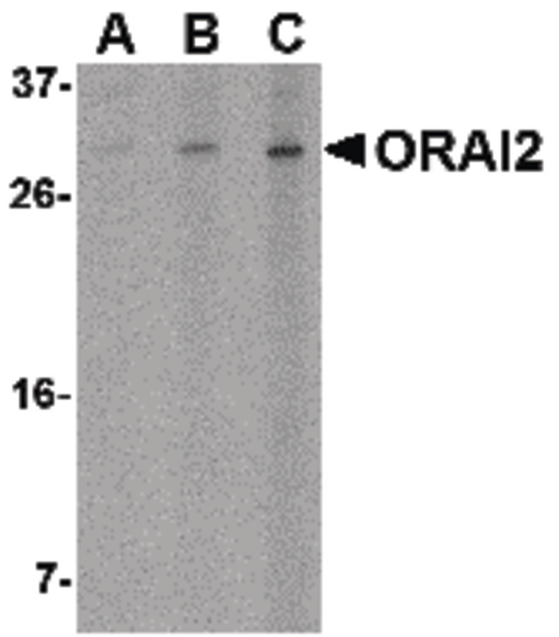 Western blot of ORAI2 in Jurkat cell lysate with ORAI2 antibody at (A) 1, (B) 2 and (C) 4 ug/ml.