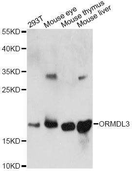 ORMDL3 Antibody - Western blot analysis of extracts of various cell lines, using ORMDL3 antibody at 1:1000 dilution. The secondary antibody used was an HRP Goat Anti-Rabbit IgG (H+L) at 1:10000 dilution. Lysates were loaded 25ug per lane and 3% nonfat dry milk in TBST was used for blocking. An ECL Kit was used for detection and the exposure time was 60s.