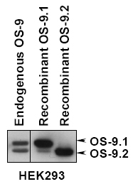 OS9 Antibody - Detection of OS-9.1 and OS-9.2 in total HEK293 cells, HEK293 cells expressing OS-9.1 or OS-9.2 by western analysis.  This image was taken for the unconjugated form of this product. Other forms have not been tested.