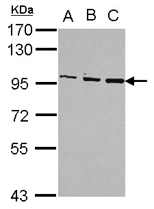 Sample (30 ug of whole cell lysate) A: Jurkat B: Raji C: K562 7.5% SDS PAGE OSBP antibody diluted at 1:1000