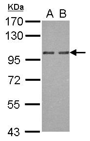 OSBP2 Antibody - Sample (30 ug of whole cell lysate) A: NT2D1 B: IMR32 7.5% SDS PAGE OSBP2 antibody diluted at 1:1000