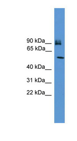 OSBPL11 Antibody - OSBPL11 antibody Western blot of MCF7 cell lysate. This image was taken for the unconjugated form of this product. Other forms have not been tested.