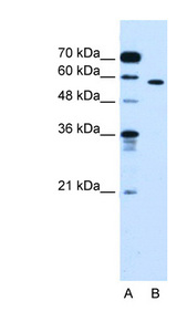 OSBPL9 Antibody - OSBPL9 antibody ARP45659_P050-NP_683702-OSBPL9(oxysterol binding protein-like 9) Antibody Western blot of Jurkat lysate.  This image was taken for the unconjugated form of this product. Other forms have not been tested.