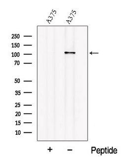 OSMR / IL-31R-Beta Antibody - Western blot analysis of extracts of A375 cells using OSMR antibody. The lane on the left was treated with blocking peptide.