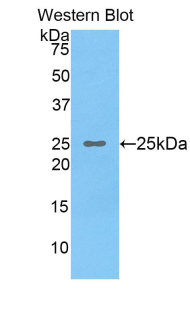 OSTF1 / OSF Antibody - Western blot of recombinant OSTF1 / OSF.  This image was taken for the unconjugated form of this product. Other forms have not been tested.