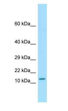 OTOS antibody Western Blot of Mouse Pancreas.  This image was taken for the unconjugated form of this product. Other forms have not been tested.