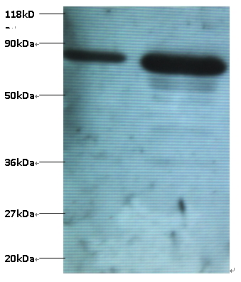 Western blot of Ubiquitin thioesterase OTUB1 antibody at 2 ug/ml. Lane 1: EC109 whole cell lysate. Lane 2: 293T whole cell lysate. Secondary: Goat polyclonal to Rabbit IgG at 1:15000 dilution. Predicted band size: 20 kDa. Observed band size: 80 kDa.  This image was taken for the unconjugated form of this product. Other forms have not been tested.
