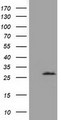 HEK293T cells were transfected with the pCMV6-ENTRY control (Left lane) or pCMV6-ENTRY OTUB2 (Right lane) cDNA for 48 hrs and lysed. Equivalent amounts of cell lysates (5 ug per lane) were separated by SDS-PAGE and immunoblotted with anti-OTUB2.