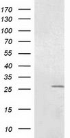 OTUB2 Antibody - HEK293T cells were transfected with the pCMV6-ENTRY control (Left lane) or pCMV6-ENTRY OTUB2 (Right lane) cDNA for 48 hrs and lysed. Equivalent amounts of cell lysates (5 ug per lane) were separated by SDS-PAGE and immunoblotted with anti-OTUB2.