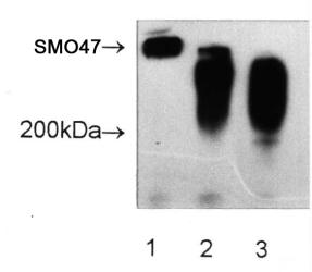 Ovarian Cancer Marker SM047 Antibody - Western Blot: SM047 Antibody (SM047) - SM047 immunoprecipitates immunoblotted with the SM047 antibody. Lane 1) UWOV1 lysate, Lane 2) ovarian cancer patients serum and Lane 3) pooled normal serum.