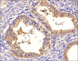 Ovarian Cancer Marker SM047 Antibody - Immunohistochemistry: SM047 Antibody (SM047) - Immunohistochemical analysis of SM047 in human ovarian cancer using SM047 antibody. Trypsin antigen retrieval was performed (0.1%, 37C 10 min).