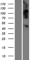 OVCA1 / DPH1 Protein - Western validation with an anti-DDK antibody * L: Control HEK293 lysate R: Over-expression lysate