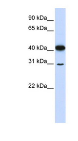 OVOL2 antibody Western blot of 721_B cell lysate. This image was taken for the unconjugated form of this product. Other forms have not been tested.