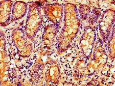 OXER1 Antibody - Immunohistochemistry image of paraffin-embedded human small intestine tissue at a dilution of 1:100