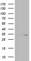 HEK293T cells were transfected with the pCMV6-ENTRY control (Left lane) or pCMV6-ENTRY OXNAD1 (Right lane) cDNA for 48 hrs and lysed. Equivalent amounts of cell lysates (5 ug per lane) were separated by SDS-PAGE and immunoblotted with anti-OXNAD1.