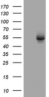 OXSM / KS Antibody - HEK293T cells were transfected with the pCMV6-ENTRY control (Left lane) or pCMV6-ENTRY OXSM (Right lane) cDNA for 48 hrs and lysed. Equivalent amounts of cell lysates (5 ug per lane) were separated by SDS-PAGE and immunoblotted with anti-OXSM.