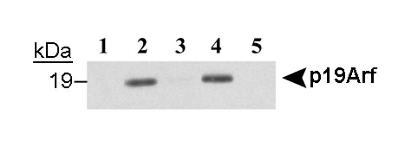 p19ARF (Mouse Cdkn2a) Antibody - Immunoprecipitation of p19Arf using p19ARF, clone 12-A1-1 antibody. Total cell lysates (250 ug) from NIH3T3 cells which have deleted the Arf gene (lane 5) and from NIH3T3 cells expressing an HA-tagged version of p19Arf (lanes 3, 4) were incubated with control rat IgG (lane 3), or p19ARF, clone 12-A1-1 antibody (lanes 4, 5) and protein G- Sepharose. Precipitated proteins were resolved by SDS-PAGE and analyzed by Western blotting using an anti-HA antibody. Unprecipitated total cell lysates (25 ug, equivalent to 10% of immunoprecipitation) f.