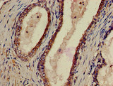 Immunohistochemistry of paraffin-embedded human prostate cancer using P2RX1 Antibody at dilution of 1:100