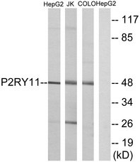 Western blot analysis of lysates from HepG2, Jurkat, and COLO cells, using P2RY11 Antibody. The lane on the right is blocked with the synthesized peptide.